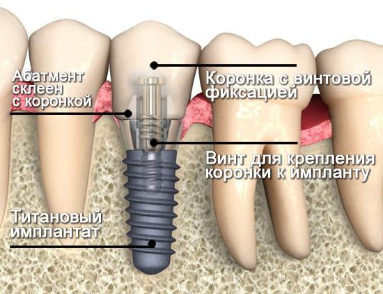 Имплантация зубов в СПб по доступной цене